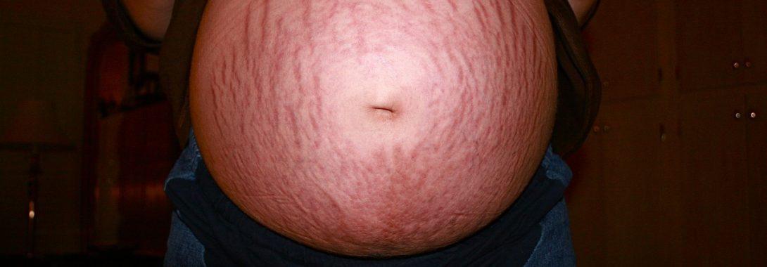 Problemy po i podczas ciąży